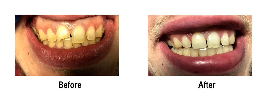 Before and After Dental Photos - Smile Makeovers